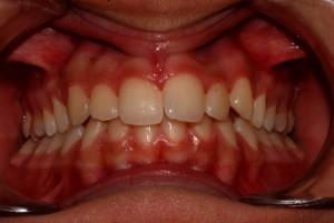 Prima: a bocca chiusa