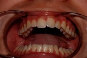 Prima: a bocca aperta (notare la limitazione)