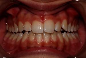 Dopo: a bocca chiusa