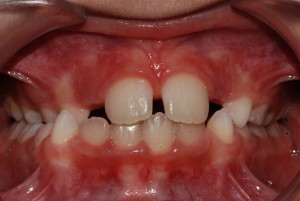 Prima: latero-deviazione mandibolare