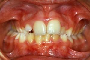 Prima: ostruzione delle vie aeree nasali posteriori