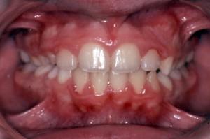 Dopo ortopedia: spazio aereo posteriore delle vie nasali libero