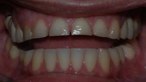 Denti usurati per effetto di bruxismo