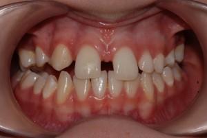 Spazi tra i denti