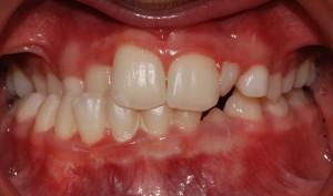 Deviazione della mandibola